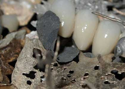 dental gold scrap buyer