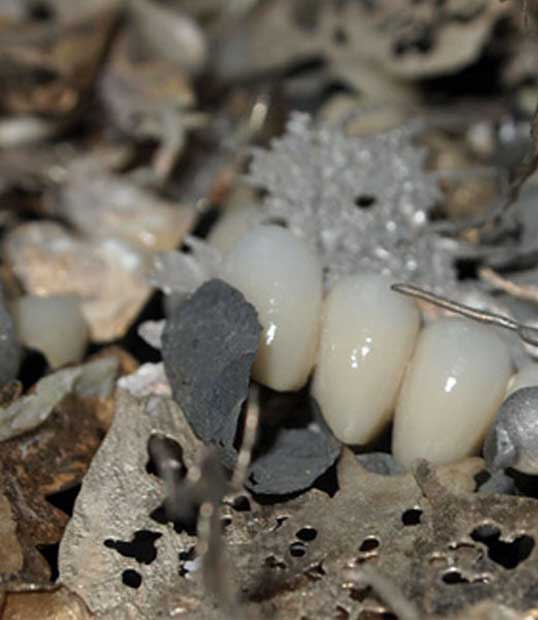 dental metal scrap buyers